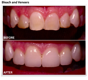 veneers-teeth-whitening