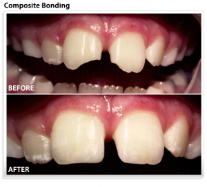 dental-composite-teeth-bonding