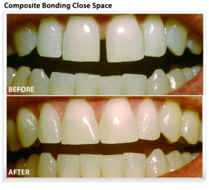 cosmetic-dental-bonding