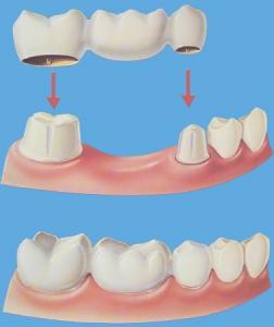 dental-bridges-ventura