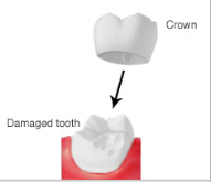 crown-dental-ca