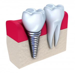 dental-implants-ventura-dentist