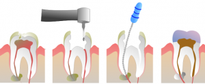 endodonic-therapy-ventura-ca