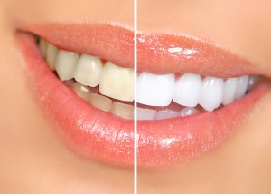 teeth-whitening-dentist-ventura