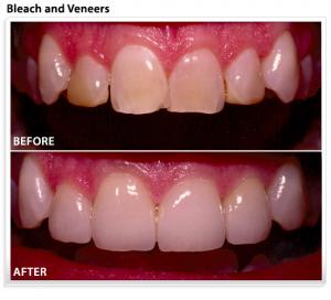 veneers-teeth-whitening
