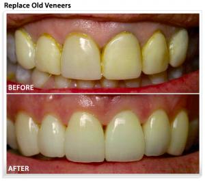 replace-veneers