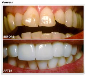 dental-veneers-ca