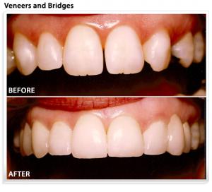 dental-bridge-veneers