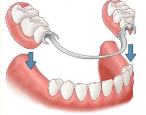 partial-denture-dentist-ventura