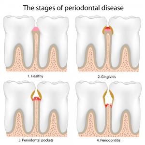 periodontial-disease-treatment-ventura