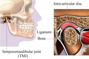 temporomandibular-disorder-ventura