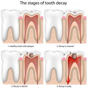 dental-fillings-dentist-ventura